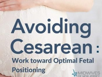 Avoiding Cesarean Work Toward Optimal Fetal Positioning