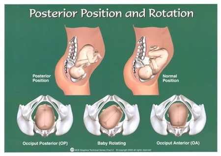 Posterior Position and Rotation diagram
